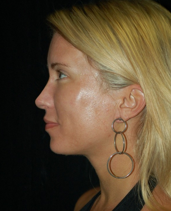 Nose Surgery - Rhinoplasty after 1253175