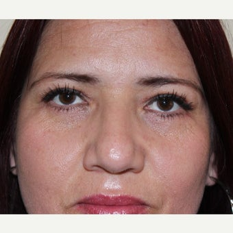 35-44 year old woman treated with Eyelid Surgery after 2669666