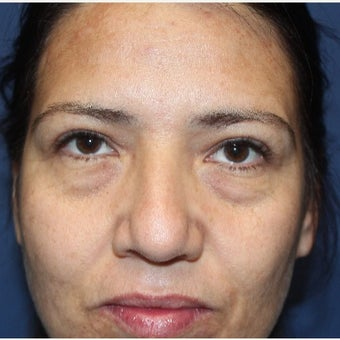 35-44 year old woman treated with Eyelid Surgery before 2669666