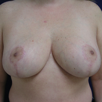 45-54 year old woman treated with Breast Reduction after 3253859