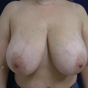 45-54 year old woman treated with Breast Reduction before 3253859