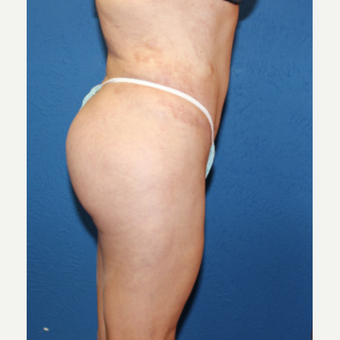45-54 year old woman treated with Brazilian Butt Lift after 2690939
