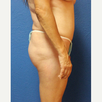 45-54 year old woman treated with Brazilian Butt Lift before 2690939