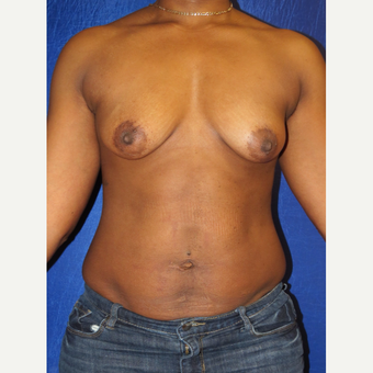 35-44 year old woman treated with Breast Augmentation before 3136079
