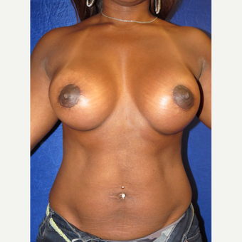 35-44 year old woman treated with Breast Augmentation after 3136079