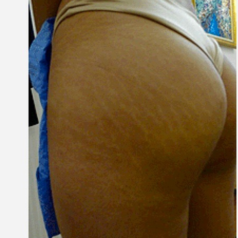 35-44 year old woman treated with Stretch Marks Treatment