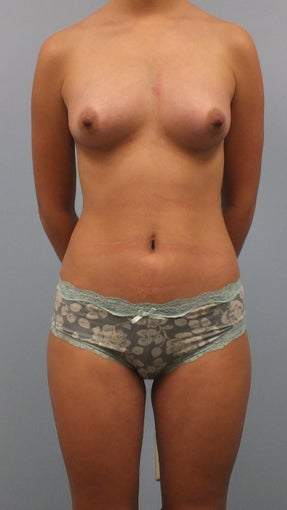 20 year old female desiring breast enlargement without implants after 1491700