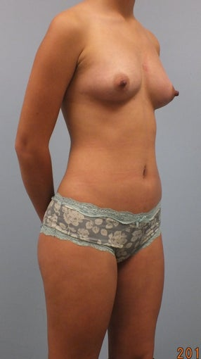 20 year old female desiring breast enlargement without implants 1491700