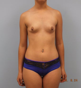 20 year old female desiring breast enlargement without implants before 1491700