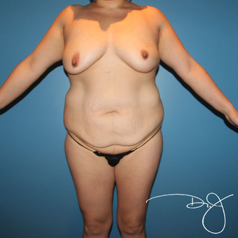 25-34 year old woman treated with Mommy Makeover before 3038365