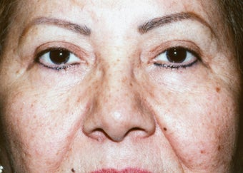 Upper Blepharoplasty after 1003290