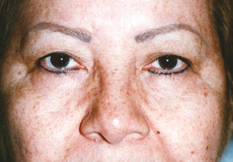 Upper Blepharoplasty before 1003290