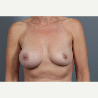 47 year old woman treated with Breast Implant Removal before 2976567