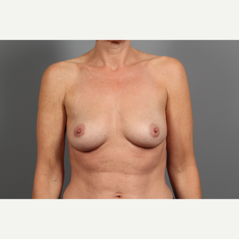 47 year old woman treated with Breast Implant Removal after 2976567