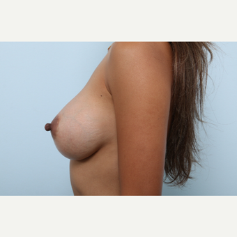 Breast Augmentation after 3459809