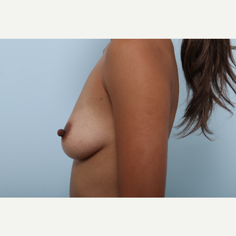 Breast Augmentation before 3459809