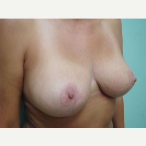 35-44 year old woman treated with Breast Lift after 3168257