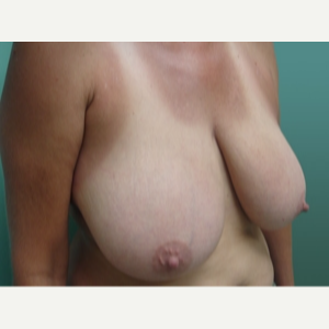 35-44 year old woman treated with Breast Lift before 3168257