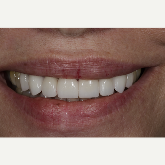 55-64 year old woman treated with Porcelain Veneers after 3167328