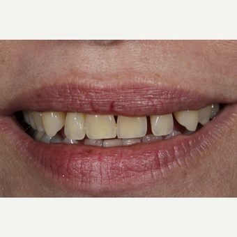55-64 year old woman treated with Porcelain Veneers before 3167328