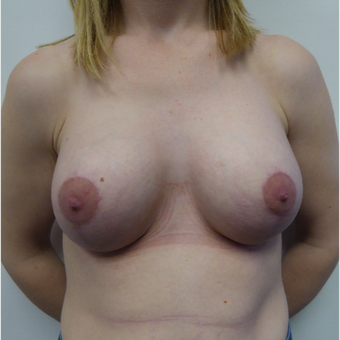 35-44 year old woman treated with Breast Lift after 3428158