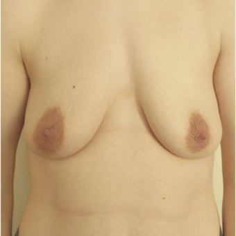 35-44 year old woman treated with Breast Lift before 3428158