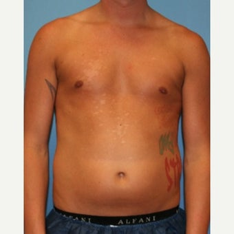 18-24 year old man treated with Liposuction before 1747110