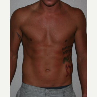 18-24 year old man treated with Liposuction after 1747110
