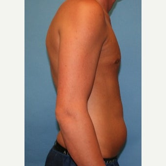18-24 year old man treated with Liposuction 1747110