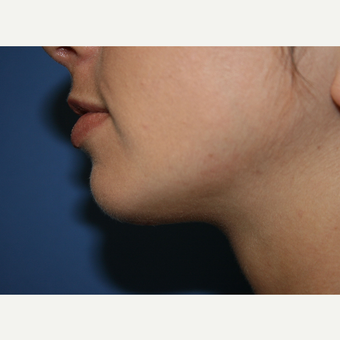 18-24 year old woman treated with Chin Implant after 2994265