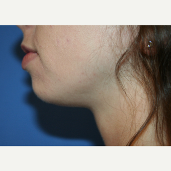 18-24 year old woman treated with Chin Implant before 2994265