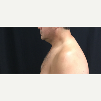 45-54 year old man chin treated with CoolSculpting before 3594841