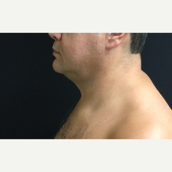 45-54 year old man chin treated with CoolSculpting after 3594841