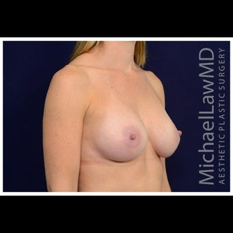 35-44 year old woman treated for Sientra Breast Implants after 1526294
