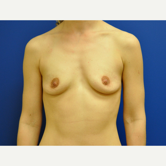 25-34 year old woman treated with Breast Augmentation before 3406680