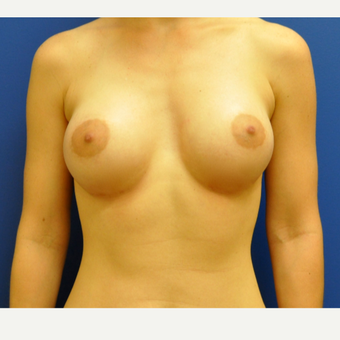 25-34 year old woman treated with Breast Augmentation after 3406680