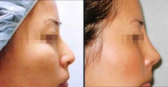 Rhinoplasty before 658814