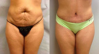 Abdominoplasty (Tummy Tuck) before 304447