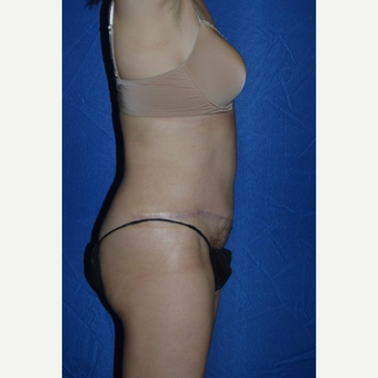 45-54 year old woman treated with No-Drain Tummy Tuck after 3655857