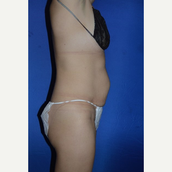 45-54 year old woman treated with No-Drain Tummy Tuck before 3655857