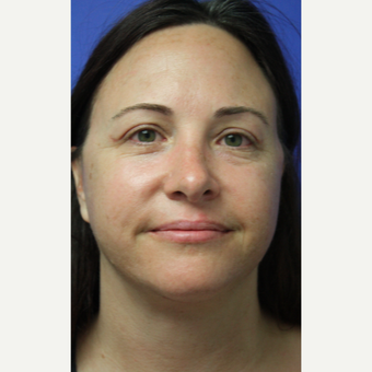 35-44 year old woman treated with Facelift after 3405572