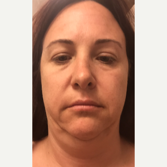 35-44 year old woman treated with Facelift before 3405572