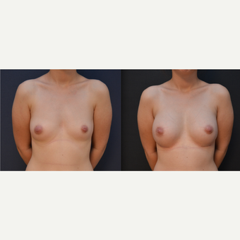 18-24 year old woman treated with Breast Augmentation before 3238814