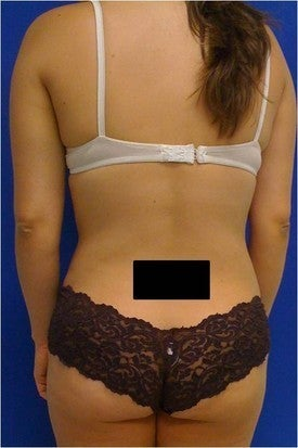 Laser Liposuction 561192