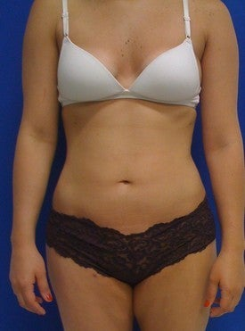 Laser Liposuction after 561192