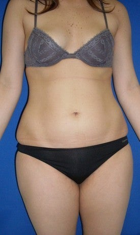 Laser Liposuction before 561192