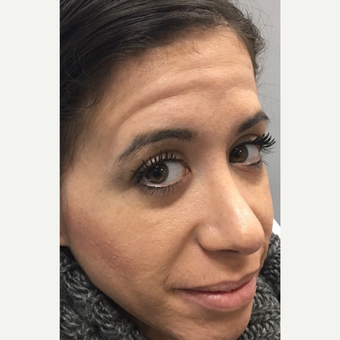 25-34 year old woman treated with Botox before 3837015