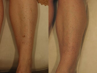 Sun Damage Removal Legs Before and After Photos  before 1350758