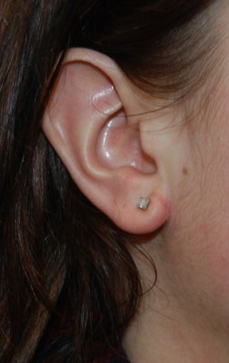 25-34 year old woman treated with Ear Lobe Reduction Surgery