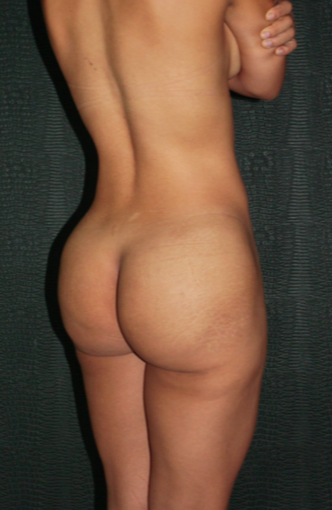18-24 year old woman treated with buttocks and lower back endoscopic removal of Silicone Injections (Biopolimeros) 1820564